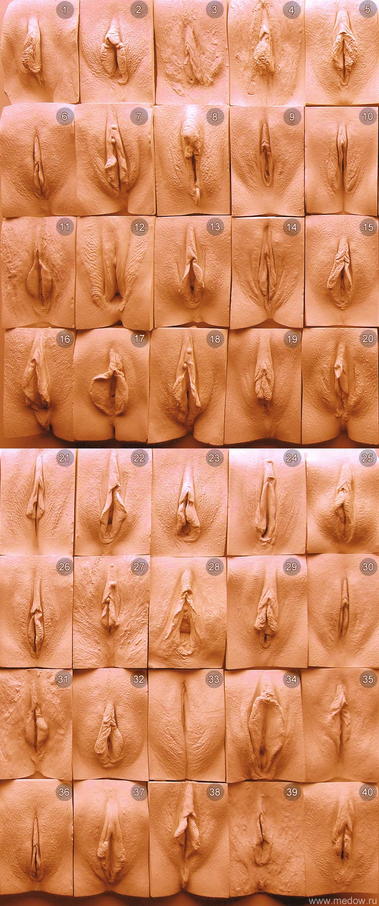рахные виды вагины