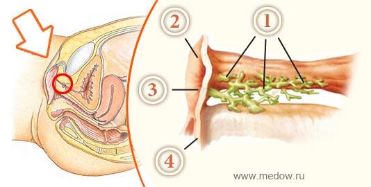 Парауретральные железы (железы Скина)