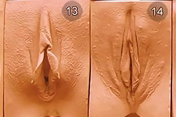 Виды женских влагалищ. Тип 13-14