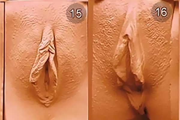 Виды женских вагин. Тип 15-16