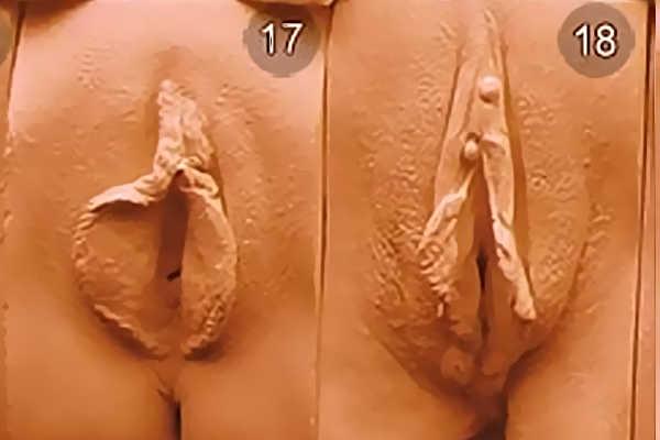 Разновидность влагалищ у девушек. Тип 17-18