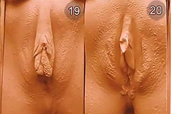 Какие бывают влагалища у девушек. Тип 19-20