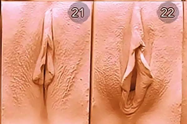 Разновидность вагин. Тип 21-22