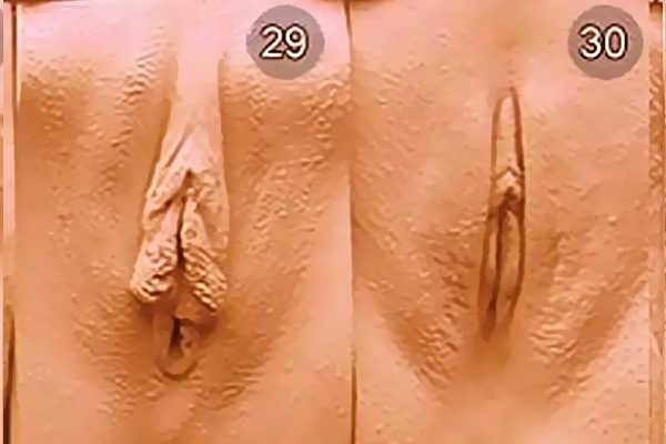 Разновидность вульв. Тип 29-30
