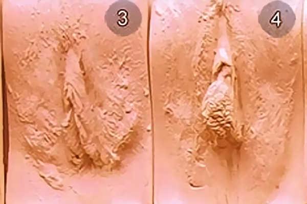 Разновидность вагин. Тип 3-4
