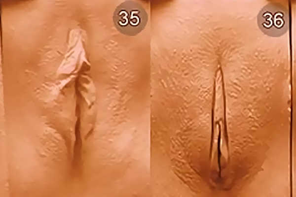 Влвгалища женщин и х разновидности. Тип 35-36